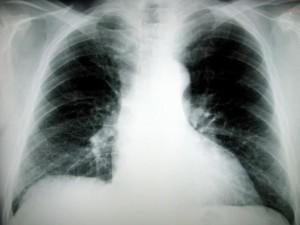 Blood-Test-Lung-Cancer