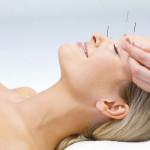 Akupunkturni tretman