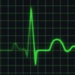 Iznenadna srčana smrt (mors subita cardialis)
