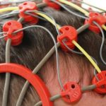 Epilepsija- simptomi i lečenje
