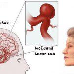 Moždana aneurizma