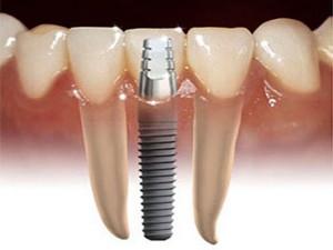 zubni_implanti_V