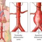 Bolesti grudne aorte