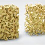 """Osteoporoza """"tihi kradljivac kostiju"""""""