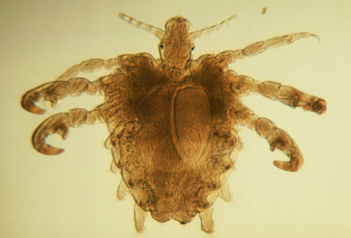 getty_rm_photo_of_pubic_lice1