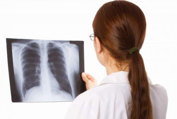 plucne bolesti
