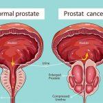 Prostata – kako je sačuvati i održati zdravom