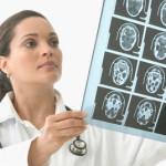 Neurologija nije bauk