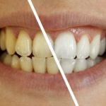 Sprečite pojavu mrlja na zubima!