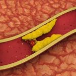 Strah i trepet za holesterol i rak, a izvrsni za struk i spermu