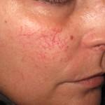 Prirodno rešenje za crvenilo i popucale kapilare na licu