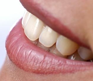 Šta je uzrok preosetljivih zuba?
