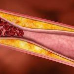 Dovedite holesterol u normalu- saveti