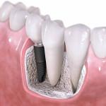 8 stvari koje bi trebalo da znate o zubnim implantima