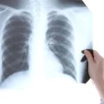 Prvi simptomi raka pluća