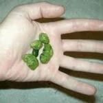 Lek za uklanjanje kamena u žuči!