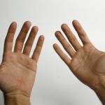 Psorijatični artritis i prirodni načini lečenja