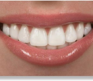 Namirnice za zdrave kosti i zube