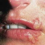 Prirodno rešenje za herpes