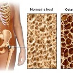 Lek koji ublažava osteoporozu