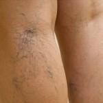 Rešenje za proširene vene i hemoroide