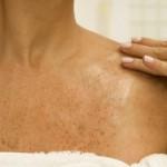 Promene na koži koje ukazuju na ozbiljne probleme