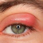 Prirodno rešenje za čmičak na oku