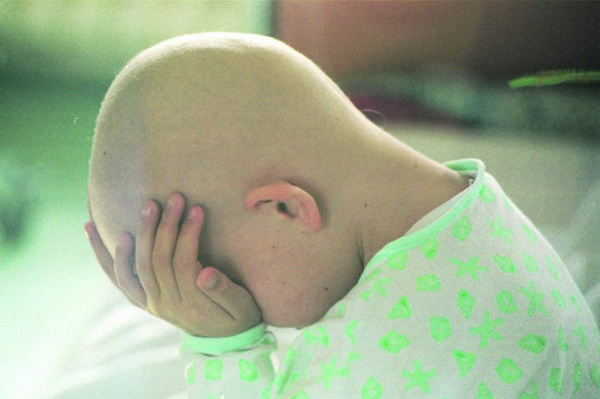 leukemija1-zag-150299