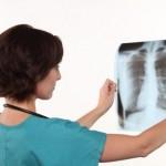 Kako izlečiti rak pluća u podmakloj fazi