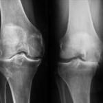 Lečenje artroze kolena