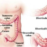 Divertikuloza klona debelog creva simptomi i lečenje