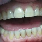 Rešite se kamenca na zubima bez odlaska kod zubara