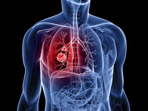 rak-pluća