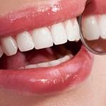Očistite kamenac sa zuba uz pomoć ove namirnice