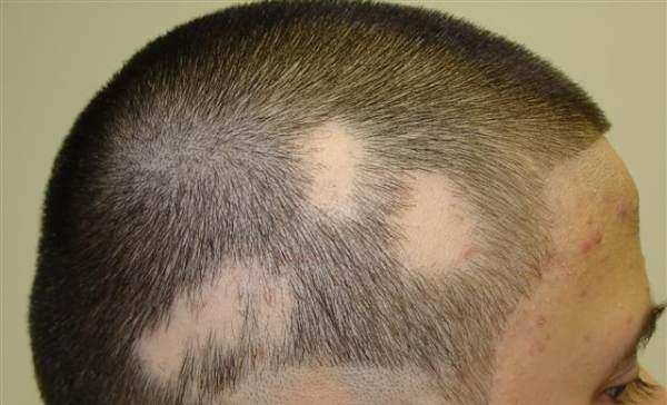 alopecija-opadanje-kose-u-krugovima