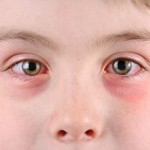 Lečenje crvenila oka – konjuktivitis