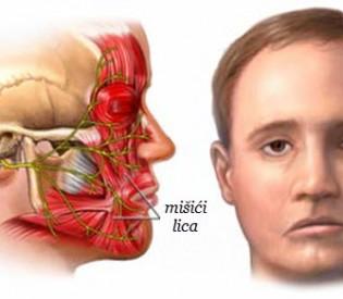 Promaja nije krivac za paralizu lica