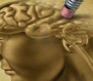 10 ranih upozoravajućih znakova Alchajmerove bolesti