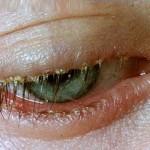 Blepharitis- bolest očnih kapaka