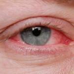 Alergijski konjunktivitis- Simptomi i lečenje