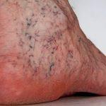 Bolest najsitnijih krvnih sudova ( kapilara )
