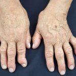 Simptomi i lečenje bolesti deformiteta zglobova