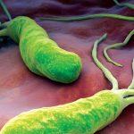 Infekcija sa Helicobacter Pylori