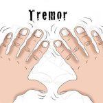 Drhtanje ( Tremor) ruku i tela