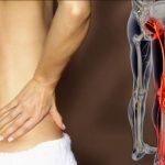 Išijas ( Lumboishialgia ) – simptomi i lečenje
