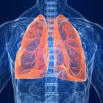 Aktinomioza pluća- simptomi i lečenje
