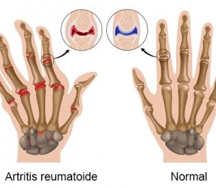 Prirodni lekovi za lečenje artritisa