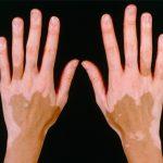 Bolest belih mrlja na licu i telu- Simptomi i lečenje