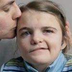Paraliza lica- Simptomi i lečenje