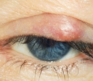 Čmičak na oku- Lečenje